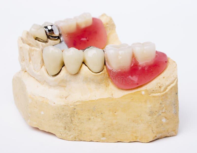 Dental prosthesis. On white background royalty free stock images