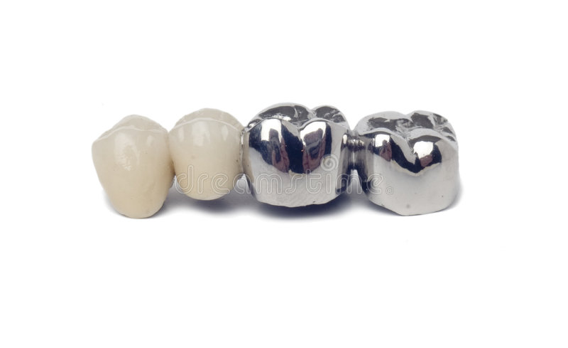 Dental prosthesis. On white background royalty free stock photo