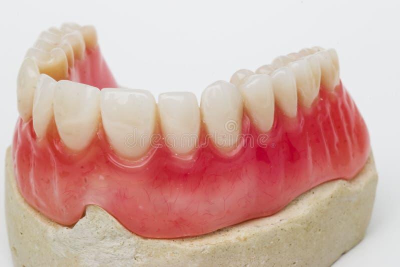 Dental prosthesis. On white background stock photo