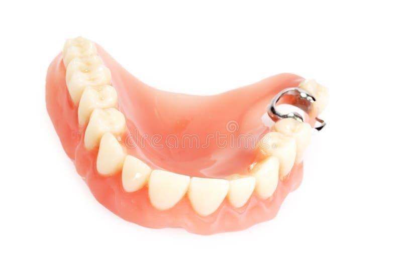 Dental prosthesis. On bright background stock image
