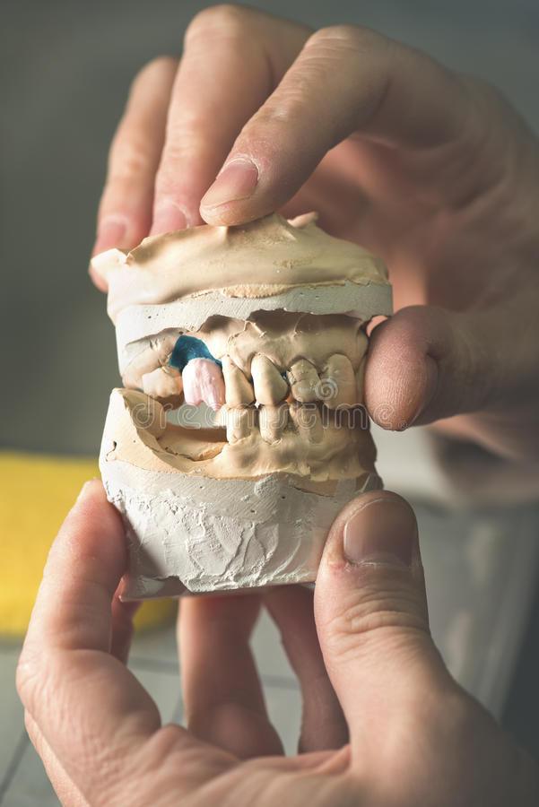 Dental Prosthesis. Artificial tooth, prosthetic, hands working on the denture, false teeth stock photos
