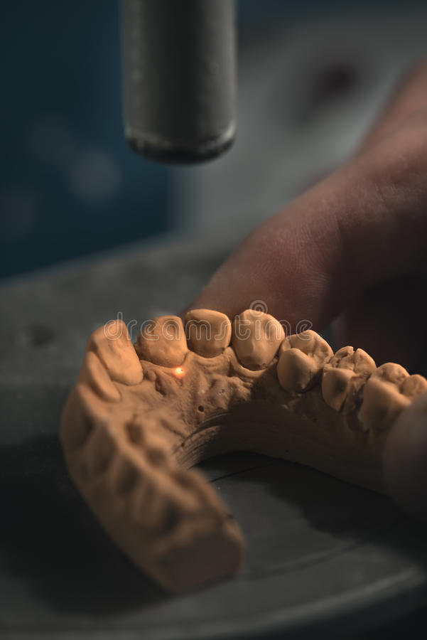 Dental Prosthesis. Artificial tooth, prosthetic, hands working on the denture, false teeth royalty free stock image