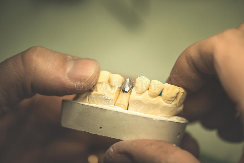 Dental Prosthesis. Artificial tooth, prosthetic, hands working on the denture, false teeth stock images