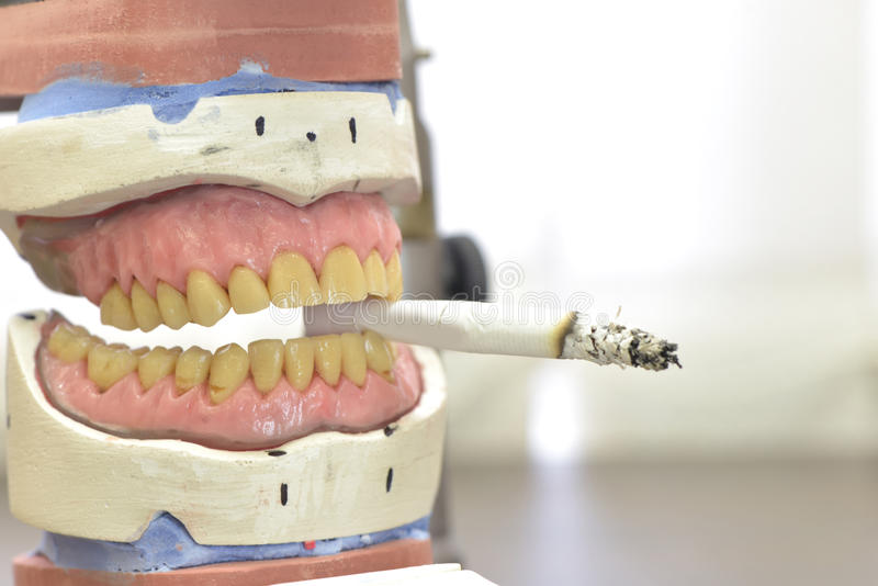 Dental prosthesis with a cigarette stock photo