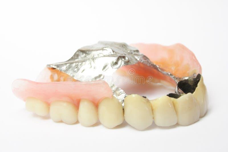 Dental prosthesis, dentures porcelain. Dentures, dental prosthesis, removable partial denture in white backgrounds royalty free stock photos