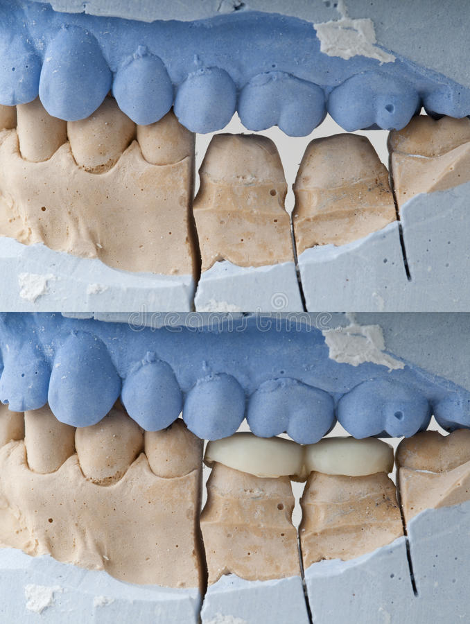 Dental Prosthesis - Filling. Photo of a dental sample, with and without dental prosthesis on it royalty free stock photo