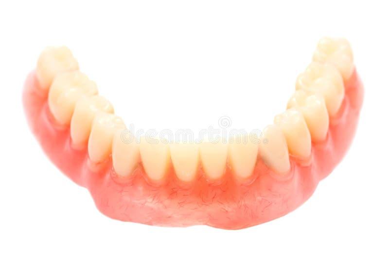 Dental Prosthesis Royalty Free Stock Photos