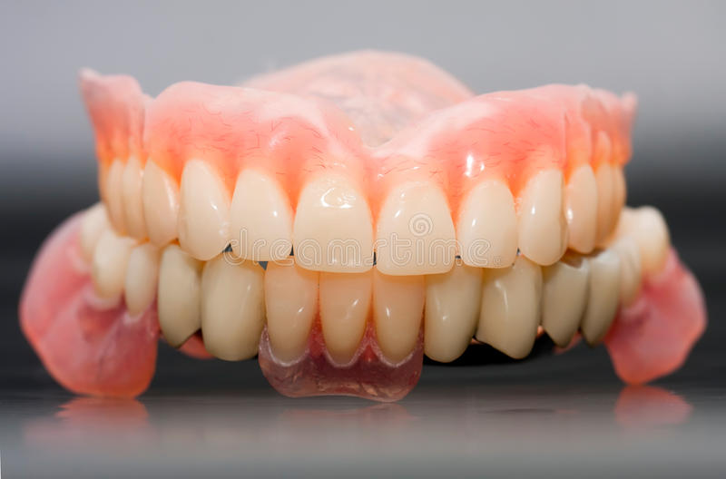 Download Dental Prosthesis Stock Photo - Image: 29999560