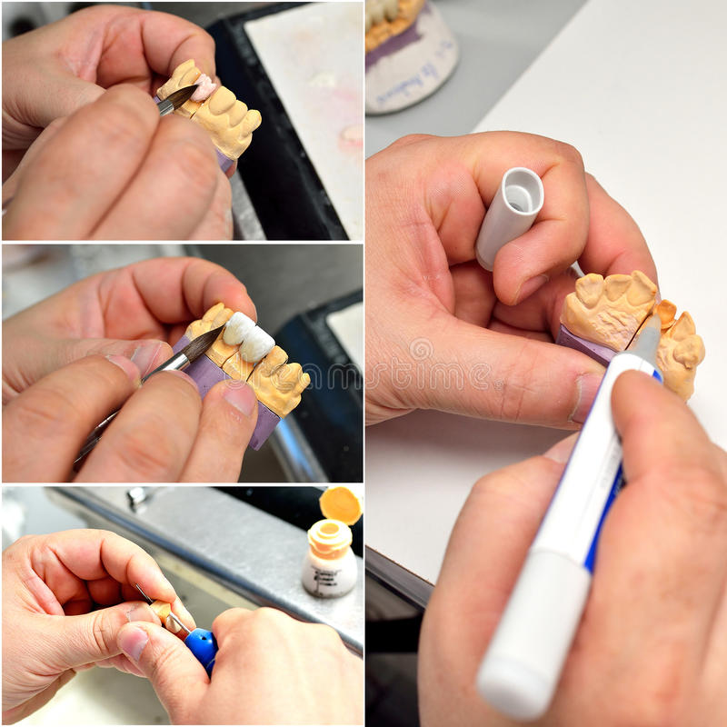 Dental prosthesis making off collage. Narrow pictures of dental technician hands grinding porcelain tooth in different position for making a dental prosthesis stock photo