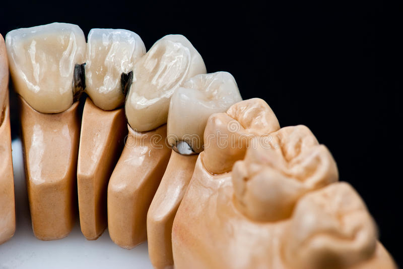 Dental prosthesis model with implanted teeth. Dental prosthesis model with ceramic teeth isolated on the black background stock photo