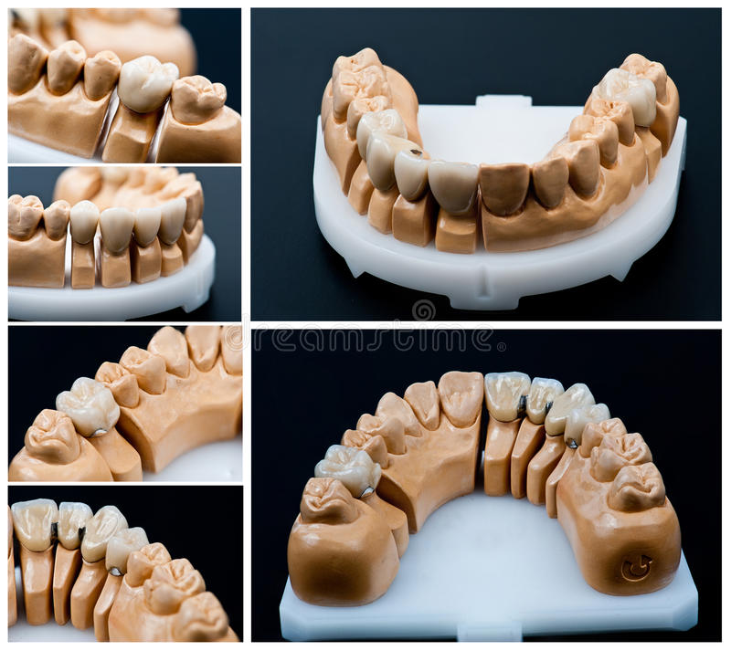 Dental prosthesis models collage. Pictures from different angle of an dental prosthesis model royalty free stock photos