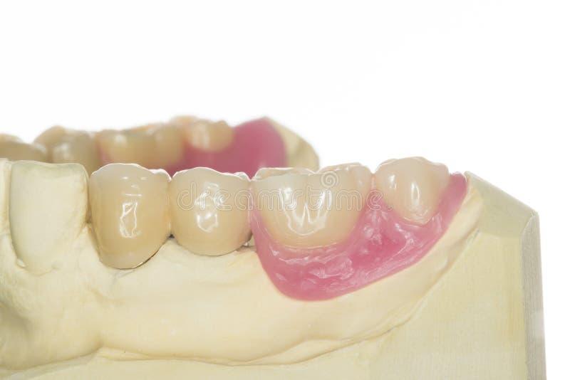 Download Dental prothesis stock image. Image of orthodontist, dental - 30388033