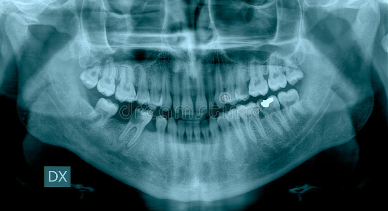 Dental X-Ray. With various diseases royalty free stock image