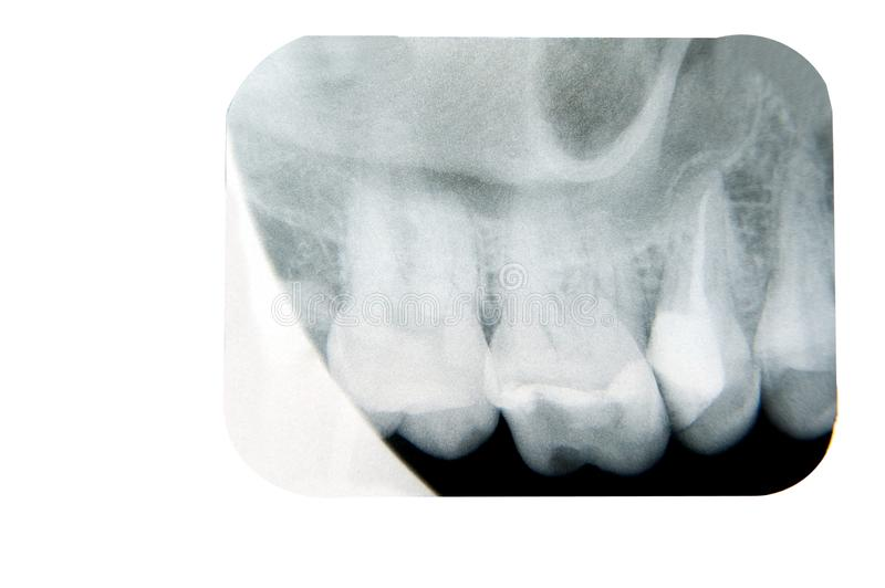Download Dental x ray stock photo. Image of isolated, root, black - 23235536