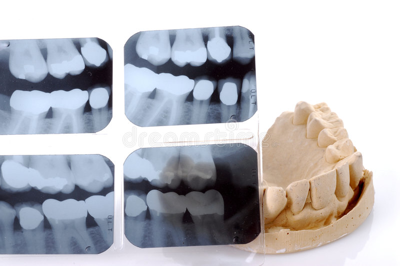 Download Dental X-Ray And Casting stock image. Image of mouth, dentist - 1926145