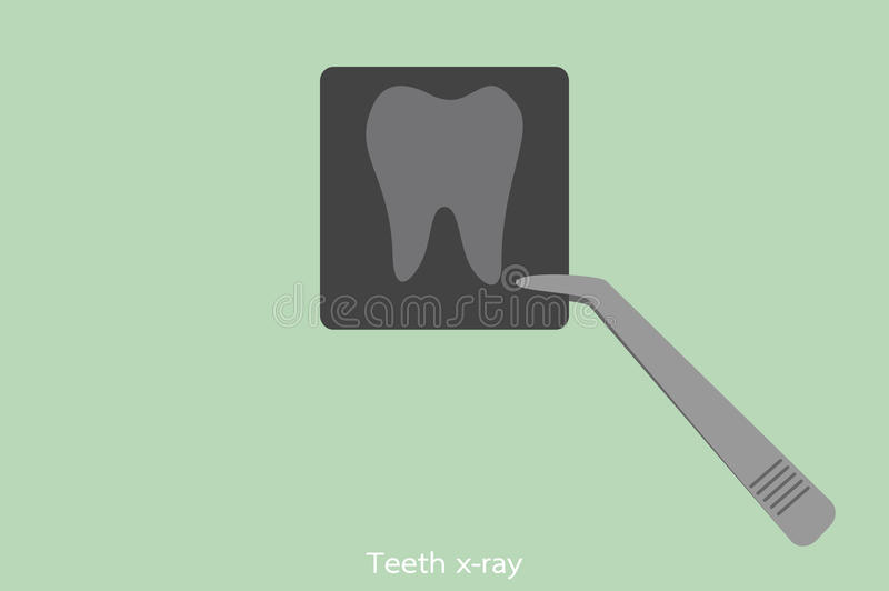 Dental x-ray film with forceps of the dentist. Tooth cartoon vector, dental x-ray film with forceps of the dentist royalty free illustration