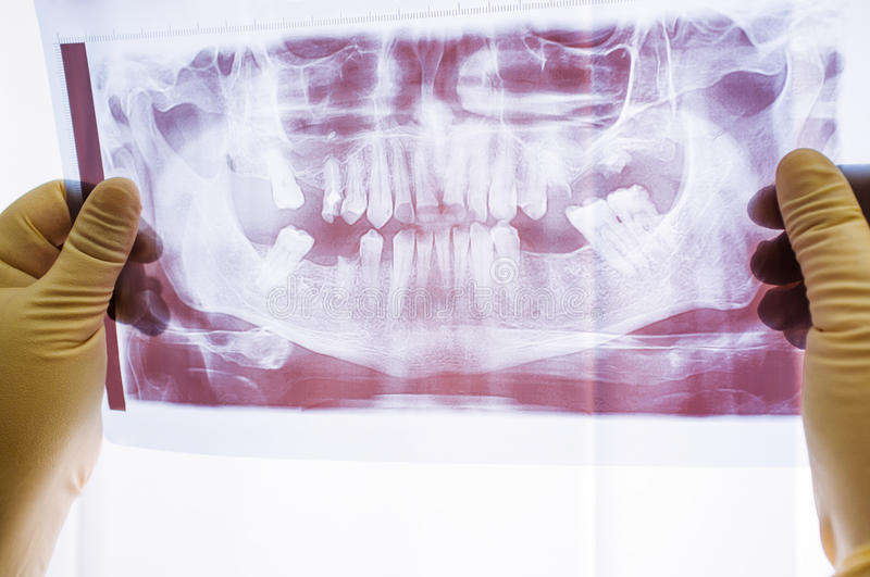 Dental x-ray with periodontitis problems royalty free stock photo