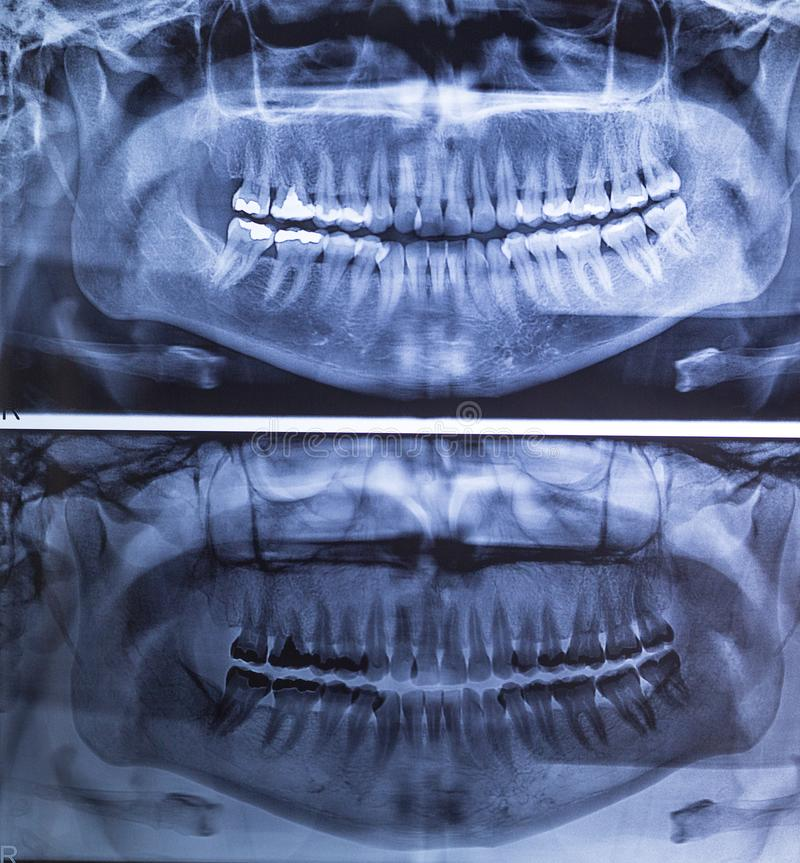Dental X-ray of a woman`s teeth, panorama 180 degrees. X-ray with amalgan filling. Tooth filling stock photography