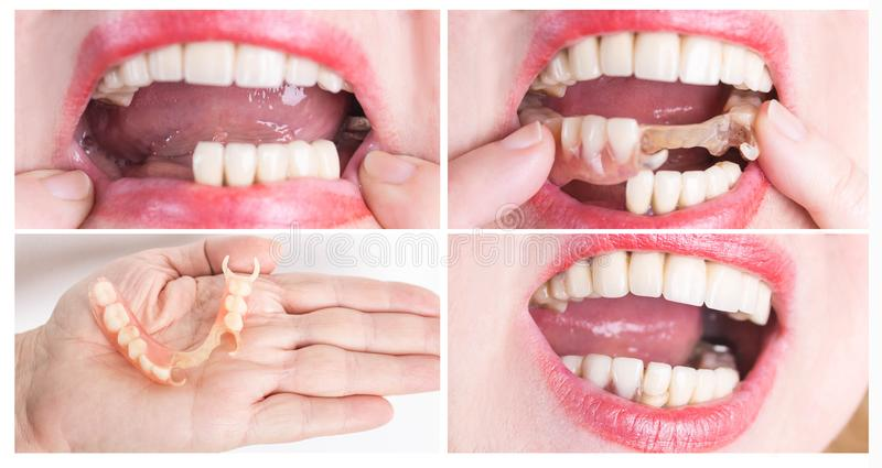 Dental rehabilitation with upper and lower prosthesis, before and after treatment. Dental rehabilitation with lower flexible nylon denture, before and after royalty free stock photo