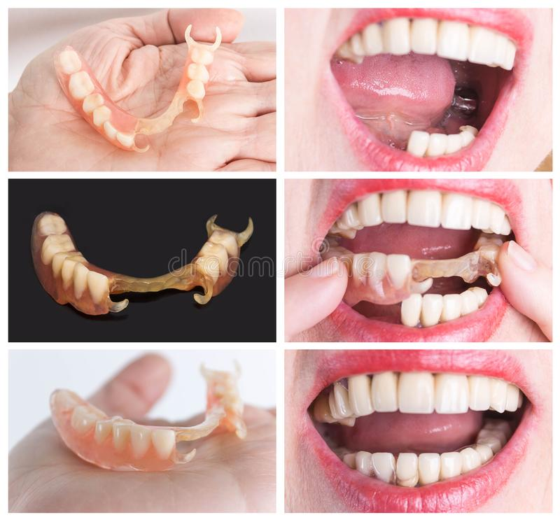 Dental rehabilitation with upper and lower prosthesis, before and after treatment. Dental rehabilitation with lower flexible nylon denture, before and after royalty free stock image