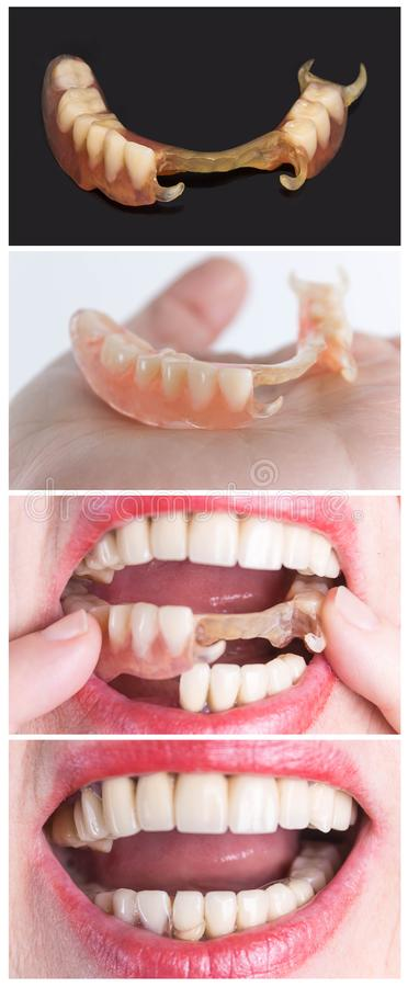 Dental rehabilitation with upper and lower prosthesis, before and after treatment. Dental rehabilitation with lower flexible nylon denture, before and after royalty free stock photos