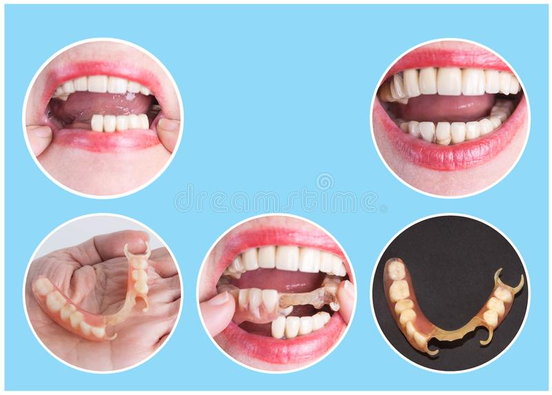 Dental rehabilitation with upper and lower prosthesis, before and after treatment. Dental rehabilitation with lower flexible nylon denture, before and after stock image