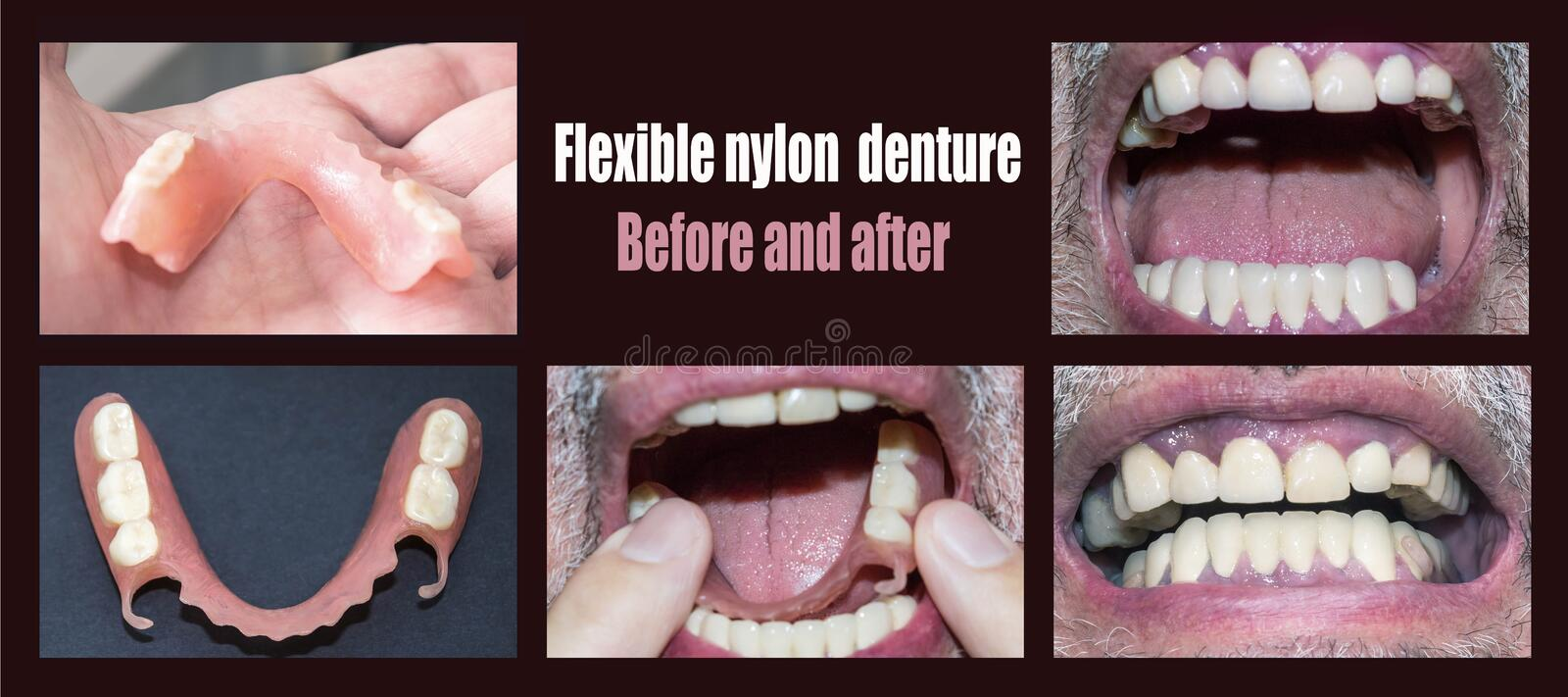 Dental rehabilitation with upper and lower prosthesis, before and after treatment. Dental rehabilitation with lower flexible nylon denture, before and after stock photography