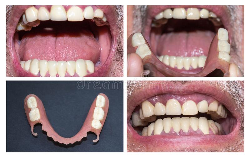 Dental rehabilitation with upper and lower prosthesis, before and after treatment. Dental rehabilitation with lower flexible nylon denture, before and after royalty free stock photography