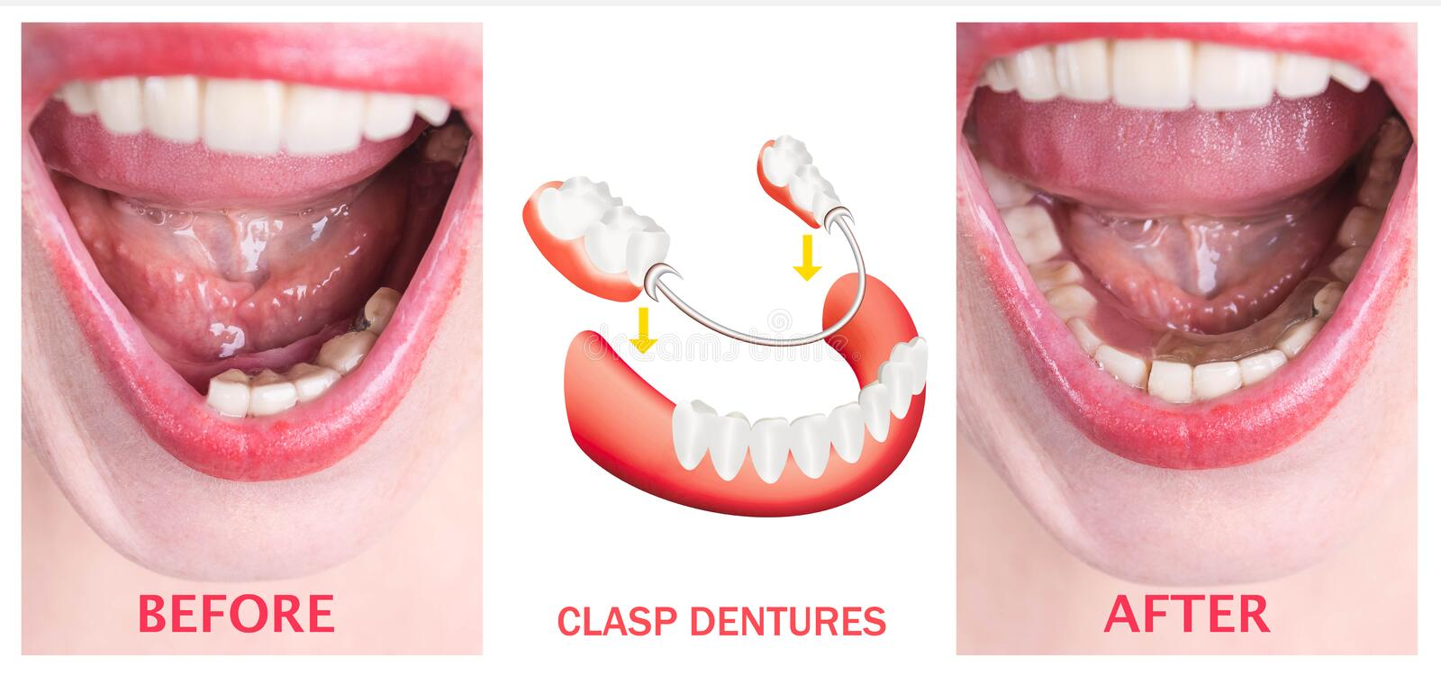 Dental rehabilitation with upper and lower prosthesis, before and after treatment. Dental rehabilitation with lower flexible nylon denture, before and after royalty free stock images
