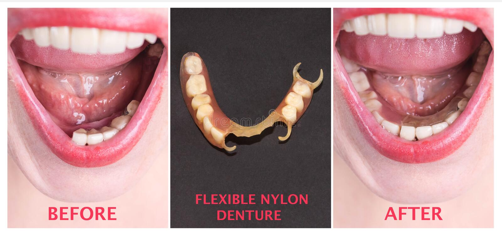 Dental rehabilitation with upper and lower prosthesis, before and after treatment. Dental rehabilitation with lower flexible nylon denture, before and after stock photos