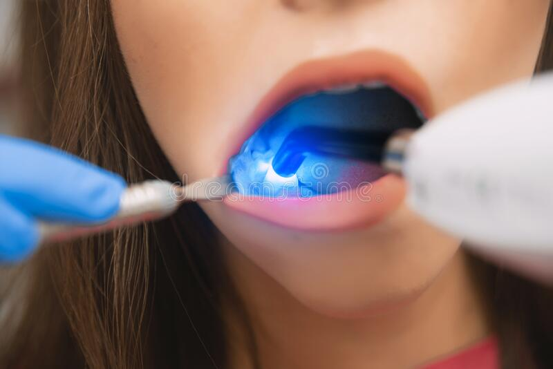 Dental restoration in dentistry with a photopolymer lamp. Girl at the dentist`s appointment. Dental restoration in dentistry with a photopolymer lamp. The girl royalty free stock photo
