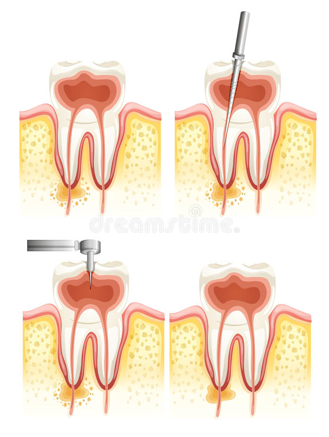 Dental root canal. Illustration of a Dental root canal deterioration on a white background royalty free illustration