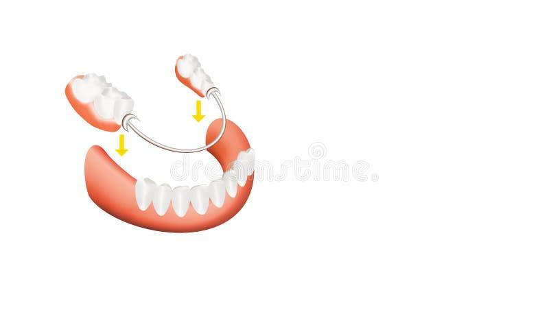 Closeup of dental skeletal prosthesis with porcelain crowns stock illustration