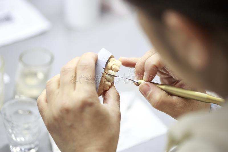 Dental technician working on a dental casting. royalty free stock images