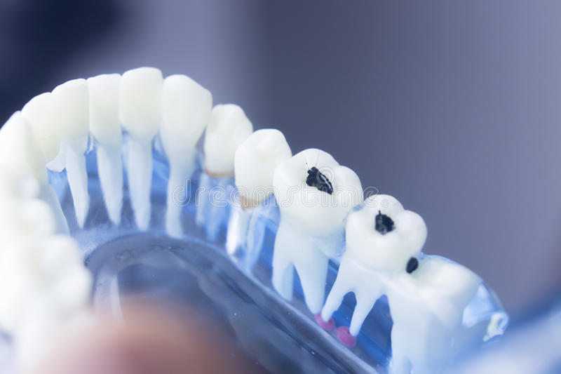 Dental teeth decay plaque model. Dental tooth dentistry student learning teaching model showing teeth, roots, gums, gum disease, tooth decay and plaque stock image