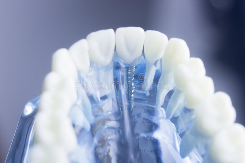 Dental teeth dentistry model stock photography