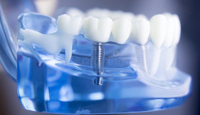 Dental teeth dentistry model. Dental tooth dentistry student learning teaching model showing teeth, roots, gums, gum disease, tooth decay and plaque stock image