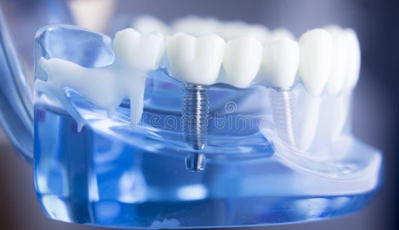 Dental teeth dentistry model stock image