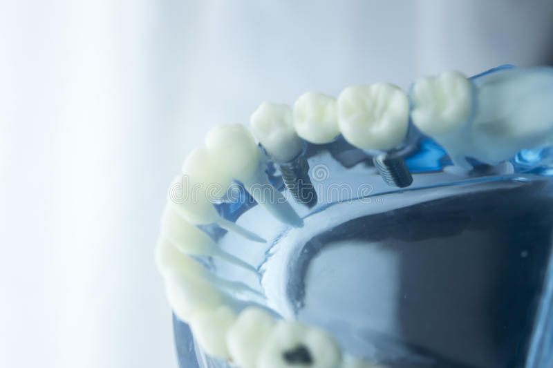 Dental teeth dentistry model. Dental tooth dentistry student learning teaching model showing teeth, roots, gums, gum disease, tooth decay and plaque royalty free stock images