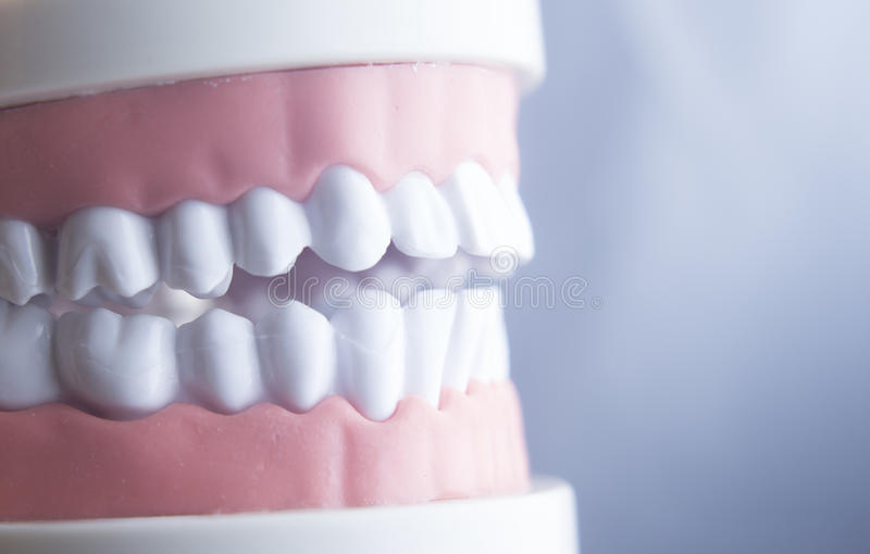 Dental teeth dentistry model. Dental tooth dentistry student learning teaching model showing teeth, roots, gums, gum disease, tooth decay and plaque royalty free stock photography
