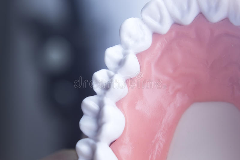 Dental teeth dentistry model. Dental tooth dentistry student learning teaching model showing teeth, roots, gums, gum disease, tooth decay and plaque royalty free stock photo
