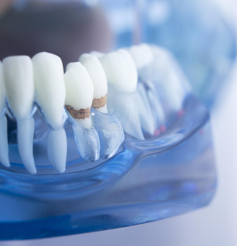 Dental teeth dentistry model. Dental tooth dentistry student learning teaching model showing teeth, roots, gums, gum disease, tooth decay and plaque royalty free stock photos