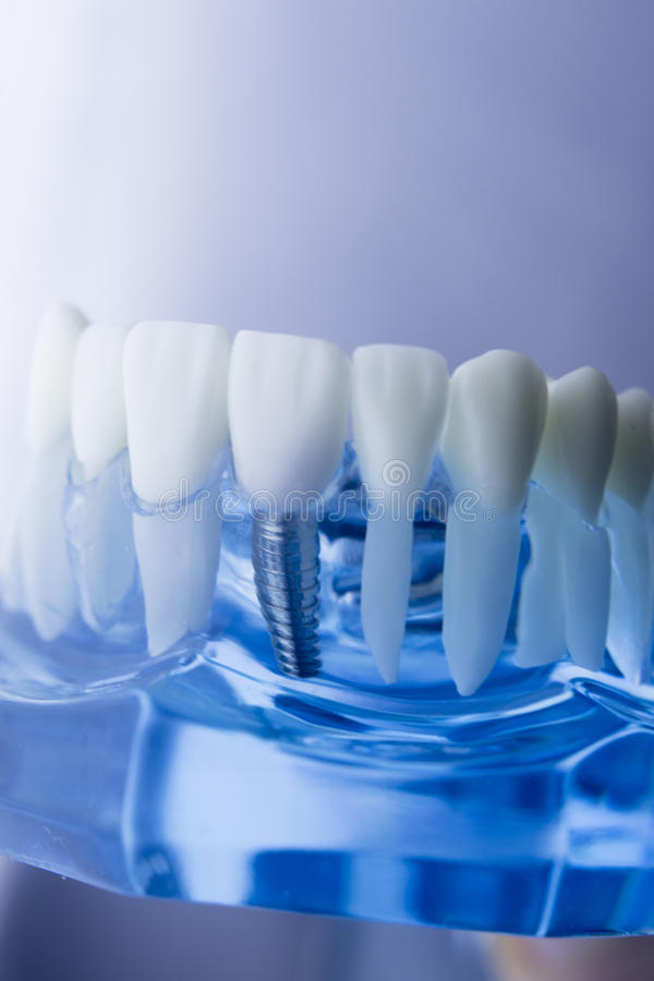 Dental teeth dentistry model. Dental tooth dentistry student learning teaching model showing teeth, roots, gums, gum disease, tooth decay and plaque royalty free stock image