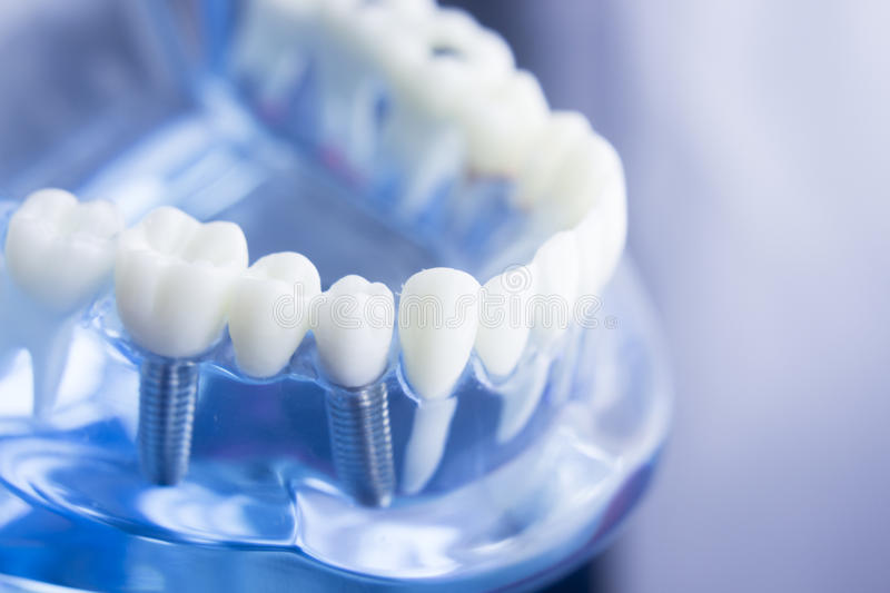 Dental teeth dentistry model. Dental tooth dentistry student learning teaching model showing teeth, roots, gums, gum disease, tooth decay and plaque stock photo