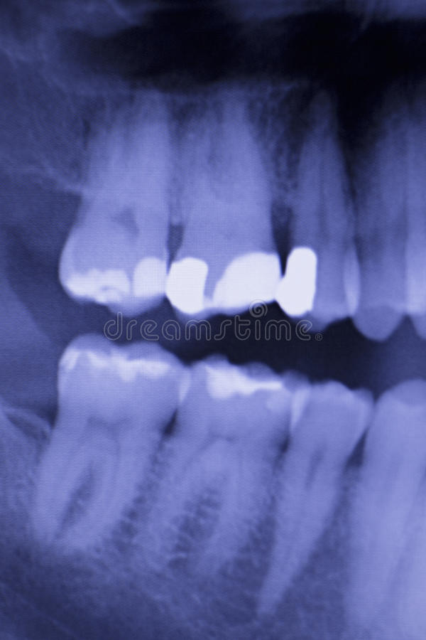 Dental teeth filling dentists xray scan. Dental teeth fillings, gum disease gingivitis dentists medical tooth x-ray test scan image stock images