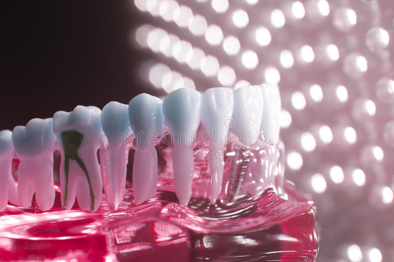 Dental teeth model root. Dentists dental teeth teaching model showing each tooth, gum, root, implant, decay, plaque and enamel royalty free stock images