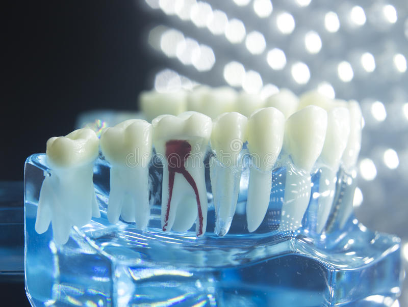 Dental teeth model root. Dentists dental teeth teaching model showing each tooth, gum, root, implant, decay, plaque and enamel stock images