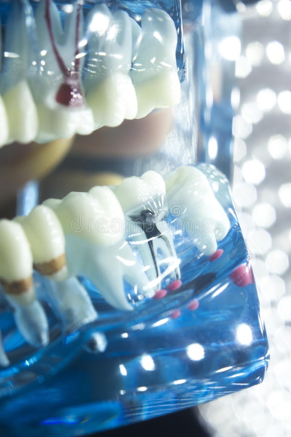 Dental teeth model root. Dentists dental teeth teaching model showing each tooth, gum, root, implant, decay, plaque and enamel stock photography