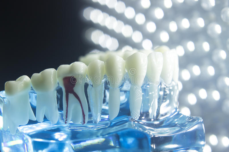 Dental teeth model root. Dentists dental teeth teaching model showing each tooth, gum, root, implant, decay, plaque and enamel royalty free stock photography
