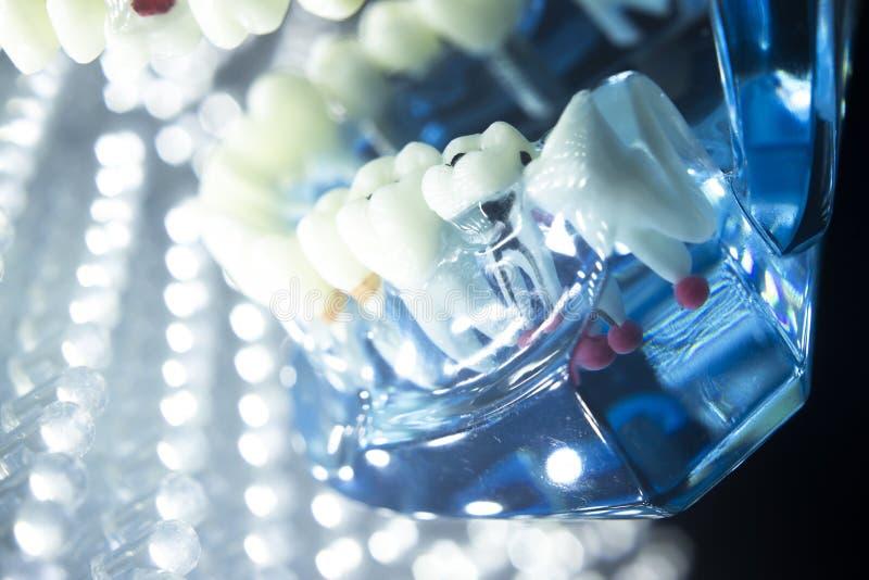 Dental teeth model root. Dentists dental teeth teaching model showing each tooth, gum, root, implant, decay, plaque and enamel stock image